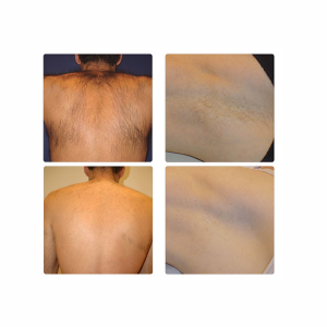 Laser Treatment Full Body