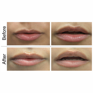 Laser Treatment Upper Lip