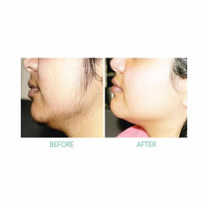 Laser Treatment for Chin (4 Sessions)